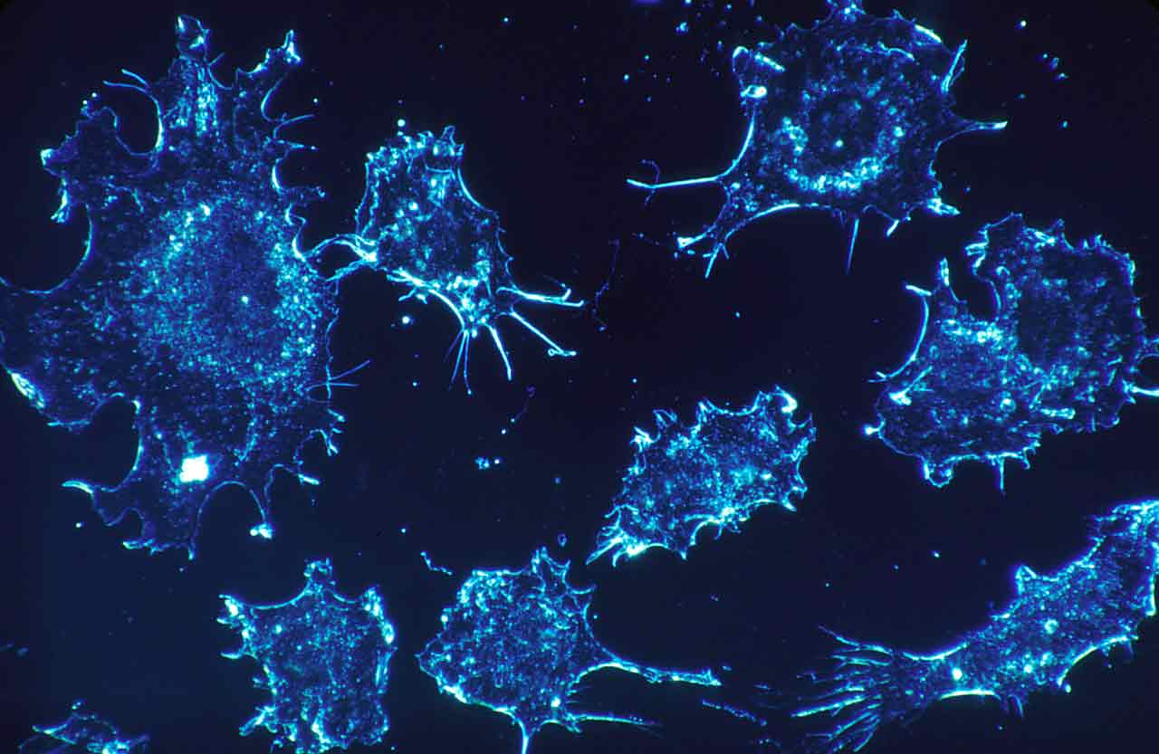 Cancer cells under a microscope