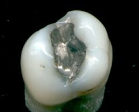 Amalgam tooth filling