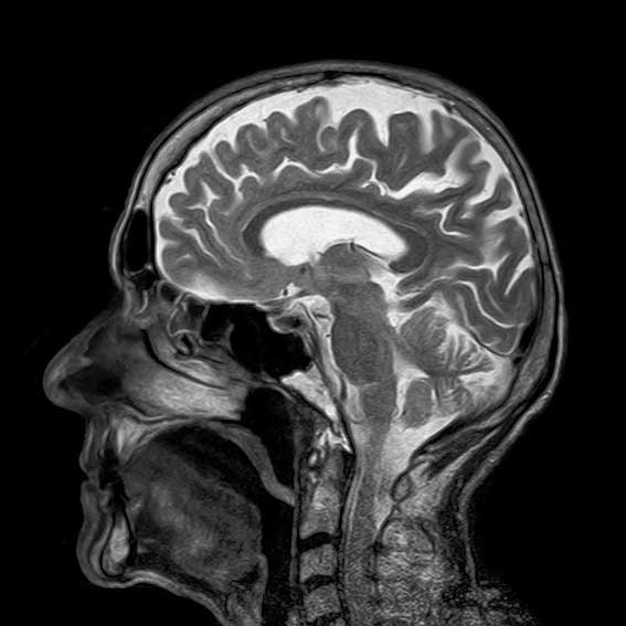 MRI scan of the head