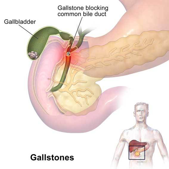 Gallstones in bile duct