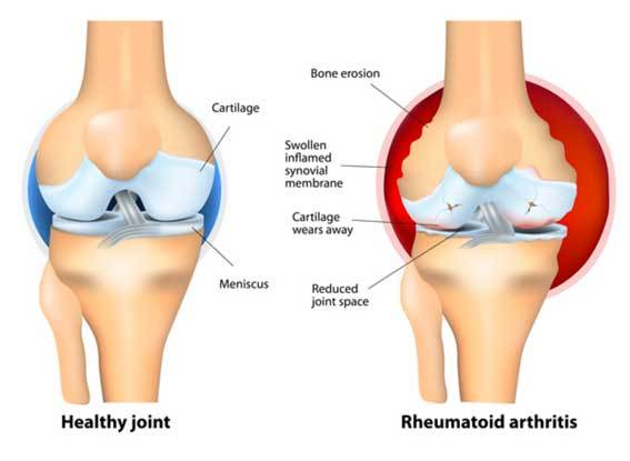 comparison between a healthy joint and rheumatoid arthritis