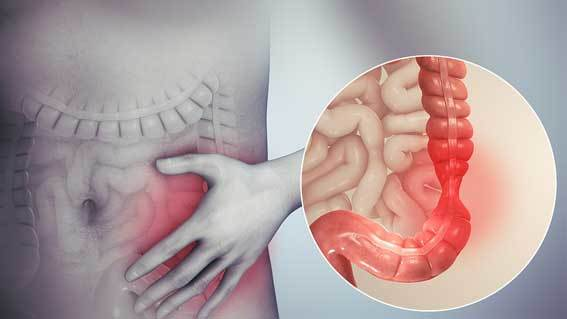 3D medical animation still showing Irritable bowel syndrome and tenesmus in the pip