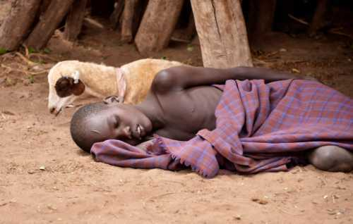 child in Africa with Malaria