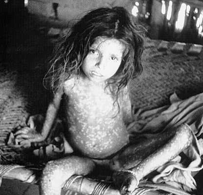 Portrait of a child with smallpox
