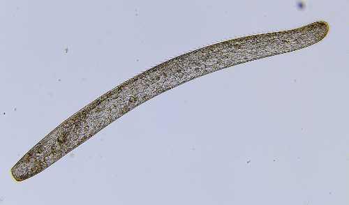 picture of Spirostomum Protozoa