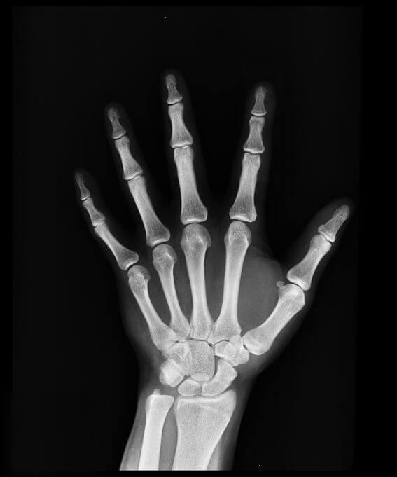 hand showing x-ray of hand