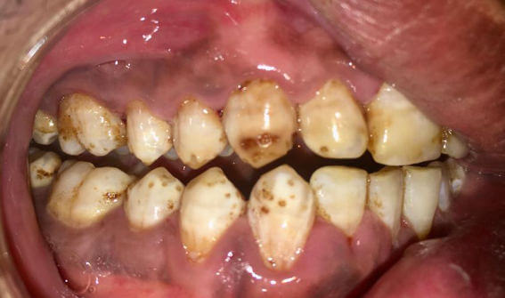 picture severe case of dental fluorosis