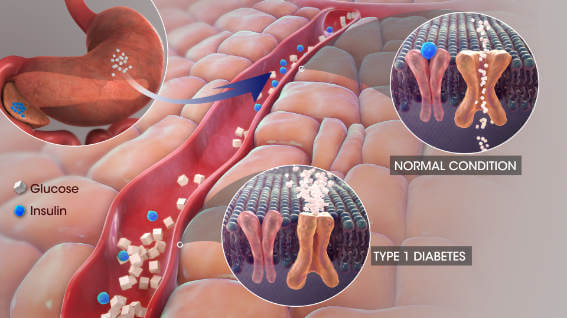Animation showing diabetes on a cellular level