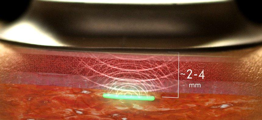 Hydrogel biosensor