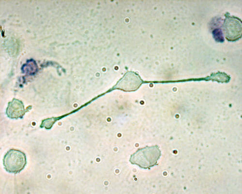 Close up of a macrophage