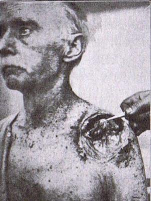 Patient Thomas Mannix with cancer on his left shoulder